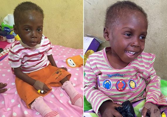 Tegnap, amikor Anja nyilvánosságra hozta a képeket az interneten, a kisfiú először ült fel saját erejéből, és végre mosolygott is.