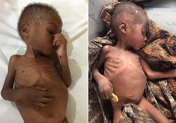 A gyermek, akit a Hope, vagyis remény névre kereszteltek az aktivisták, már nyolc hónapja éhezett, nem volt otthona, és rettenetes állapotba került.
