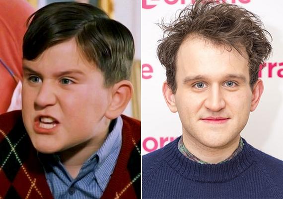 Ilyen volt Harry az első Harry Potter-filmben, és ilyen most: a színész 26 éves, de jóval idősebbnek néz ki a koránál.