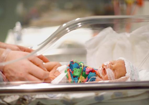 A Magyar Kórházszövetség elnöke szerint kiemelkedő a miskolci kórház teljesítménye. A kórházban augusztus 5. és 14. között kilenc koraszülött csecsemő vesztette életét. Az ügyet vizsgálják, de az egészségügyi államtitkár, Szócska Miklós szerint nem indokolt az osztály bezárása.