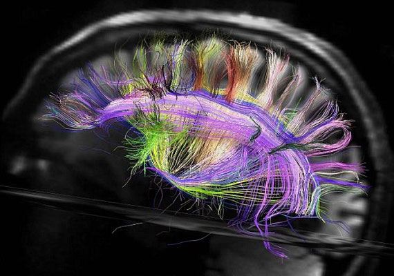 A teljes emberi agyról készített kép egy agytekervényt, és az azt merőlegesen keresztező idegrostokat mutatja be.