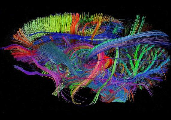 Az agy 3D-s térképével először leszünk képesek látni annak belső működését.