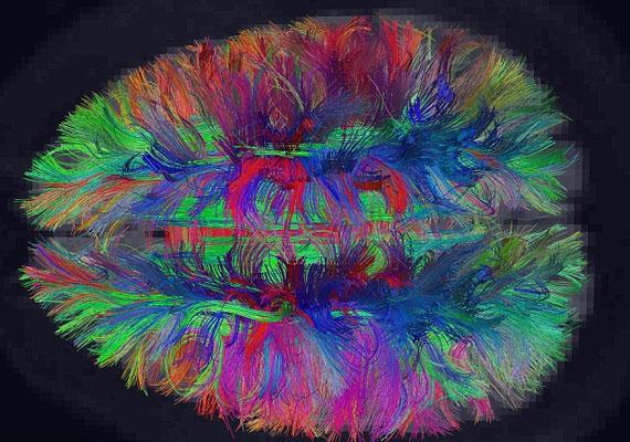 Az agyról készült térkép azt mutatja be, hogyan kapcsolódnak össze a különböző sejtek egymással.