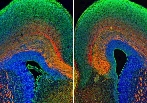 Egyértelmű különbség látható a bal oldali, átlagosan működő agy, illetve a jobb oldali, autizmussal küzdő alany agya között.