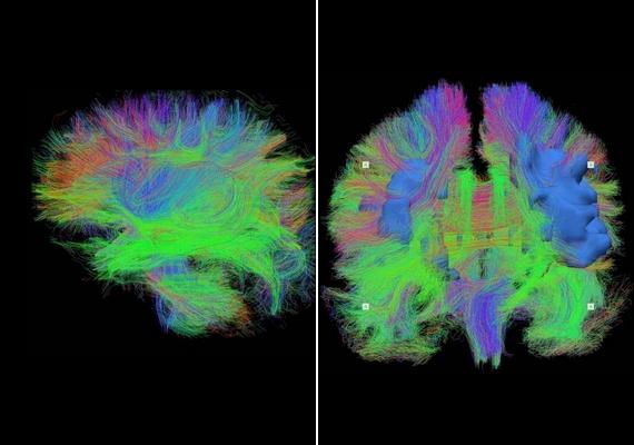 A bal oldali képen egy alvó újszülött agyi, a jobb oldali fotón pedig egy hetvenes éveiben járó felnőtt agyi aktivitása látszik. A két fotót MRI-szkennerrel készítették, és a teljes agyműködést feltérképezik.