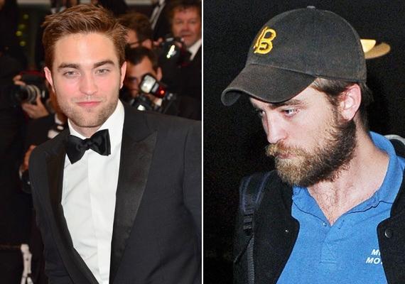 Robert Pattinson is csak a vörös szőnyegen szívdöglesztő. A színész a való életben nem sokat törődik a külsejével.