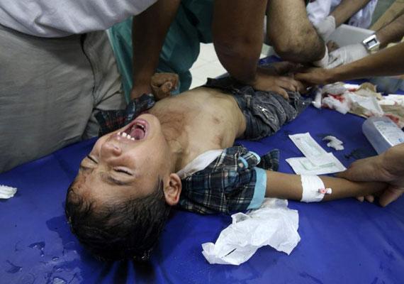 A Hamász gyakran a civilek által lakott területeken rejti el fegyvereit. Hiába az izraeli oldalon meglévő fejlett haditechnika, az eddigi áldozatok többsége mégis civil, ráadásul rengeteg gyerek halt meg. Sérült palesztin kisfiún próbálnak segíteni.