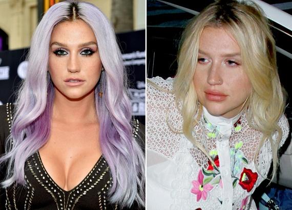A bal oldali fotón láthatod, milyen volt Kesha korábban, a jobb oldalon pedig már új, duzzadt ajkaival szerepel.