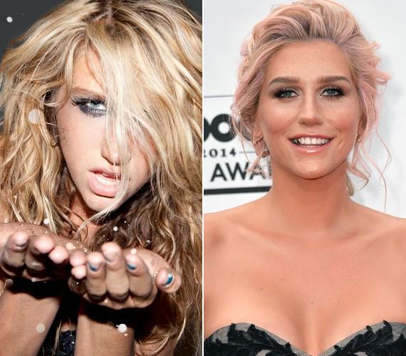 Ennyit változott Kesha öt év alatt: bár még mindig kedveli az extrém stílust, de már jobban tudja, mi áll jól neki.