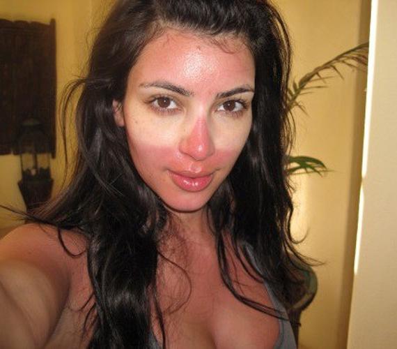 Kim Kardashian fotója azt bizonyítja, hogy bizony a sztárokat sem kíméli a napégés.