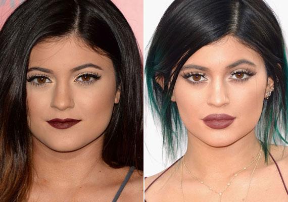 Bár Kylie sokáig tagadta, hogy mesterségesen teltek az ajkai, a Kardashian család valóságshow-jában végül bevallotta. A titkolózás teljesen felesleges volt, ugyanis egyértelműen látszik a drasztikus változás, ráadásul egy tavalyi interjúban kijelentette, már jobban örülne, ha mégis vékony ajkai lennének.