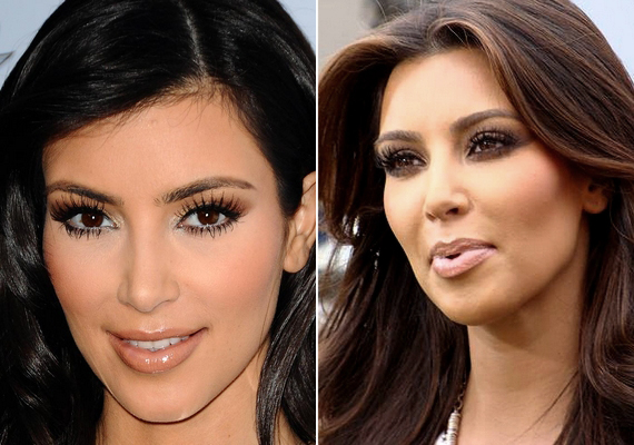 Kylie nővére, Kim Kardashian sem szereti beismerni, hogy alakítottak az arcán, de az ajakfeltöltés és az arcimplantátum messziről kiszúrható rajta.