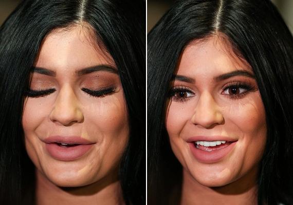 Íme, a legújabb fotók Kylie-ról: az arca merev, a bőre túl feszes, ajak,- arc- és állimplantátumai pedig nem is lehetnének feltűnőbbek.