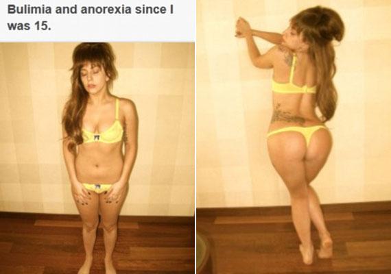 Az énekesnő arról vall, hogy 15 éves korától kezdve sokáig küzdött a bulimiával és az anorexiával...