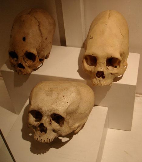 A csillaggyermek koponyája1930-ban egy mexikói bányaalagútban egy szokatlanul széles, emberire emlékeztető, de soha nem látott formájú koponyát találtak. A vizsgálatok megállapították, hogy a csont 900 éve fekszik a föld alatt, és hogy feltehetően egy 3-5 éves gyermeké - a bizarr formára azonban nincs magyarázat. A tudósok szerint a gyermek halálát egy genetikai rendellenesség okozta, ami a koponya szokatlan formáját is megmagyarázná - az ufóhívők aztonban természetesen úgy vélik, egy földönkívüli maradványai feküdtek a bánya gyomrában.