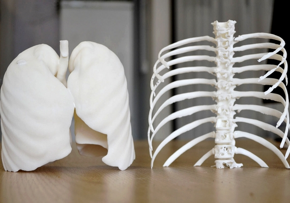 A 3D nyomtatás forradalmasíthatja az orvostudományt, még különböző protézisek létrehozására is alkalmas.