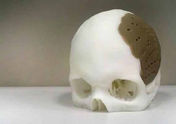 Már a koponya pótlása is lehetséges ilyen módon.