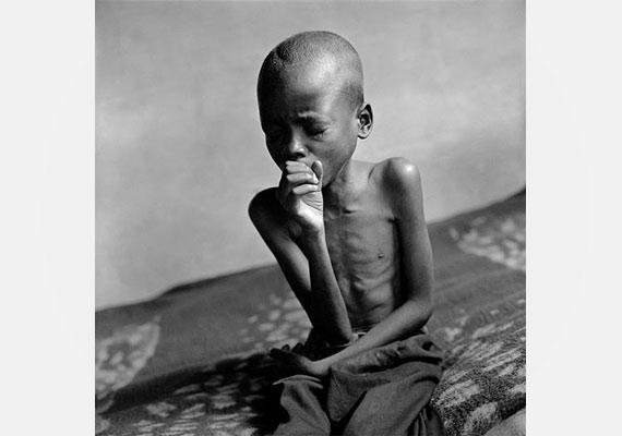 Zimbabwéban a felnőtt lakosság 33,7%-a HIV-fertőzött, de a gyerekek között is sok a beteg.