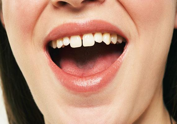 A fogak közötti rés láttán a fiúk nem tudnak majd szabadulni a gondolattól, hogy a bájos külső mögött egy igazi kis csibész vagy, aki minden mókában azonnal benne van.