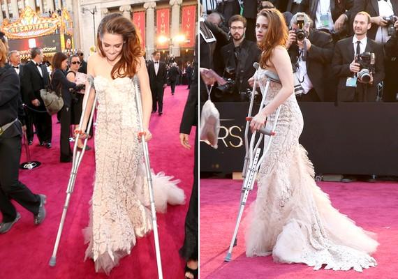 Kristen Stewart a díjátadó előtt néhány nappal megsérült, ugyanis üvegszilánkba lépett, ami csúnyán megvágta a lábát. Az est nagy részében mankóra volt szüksége.