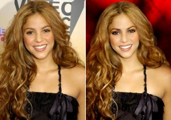 Az összes apró ráncot és párnácskát eltüntették, ami jellegzetessé tette a 36 éves Shakira arcát.