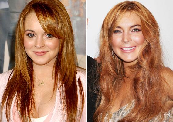 Lindsay Lohan a plasztika rabja lett. Hol van már az egykori vörös hajú, szeplős kislány?