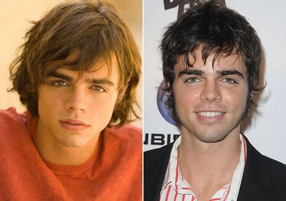 A színész 2008-ban került Hollywoodba, és szinte azonnal elkezdte plasztikáztatni az arcát. 2010-re már elég sok mindent átszabtak rajta.