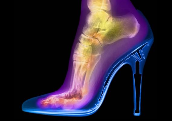 Egészen természetellenes pózban áll a láb magassarkú cipőben.