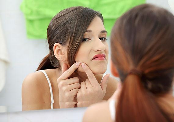 Tudjuk, hogy nagyon nehéz megállni, hogy ne nyúlj a zavaró mitesszerekhez és pattanásokhoz, de az ilyesmit jobb kozmetikusra bízni: ha te nyomkodod az arcod, abból akár maradandó hegek is származhatnak.