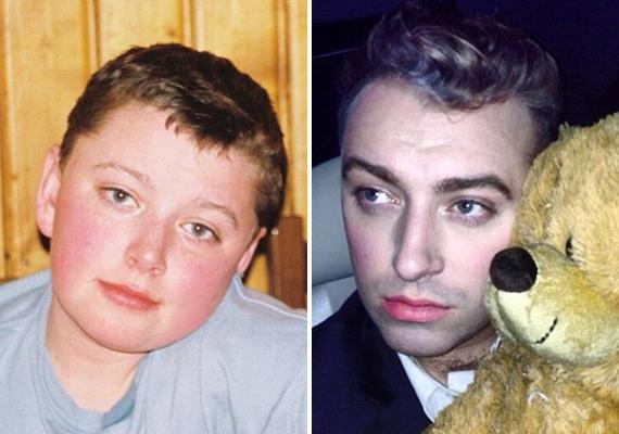 Gyerekkorában sokkal pufibb volt, a két kép összevetésekor szembetűnik, hogy a felnőttkori képen jóval keskenyebb az arca.