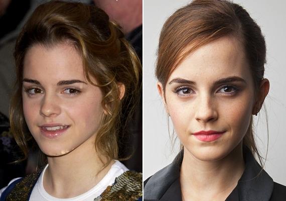 A bal oldali kép 2005-ben, a jobb oldali pedig idén készült Emma Watsonról. A színésznő most 25 éves, de 15 éves kora óta szinte semmit nem változott.