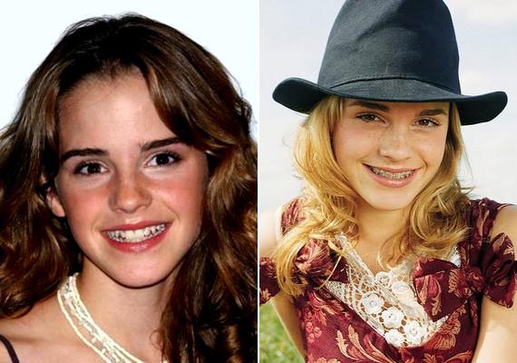Hermione-ként még kusza mosollyal ismerhetted meg Emma Watsont.