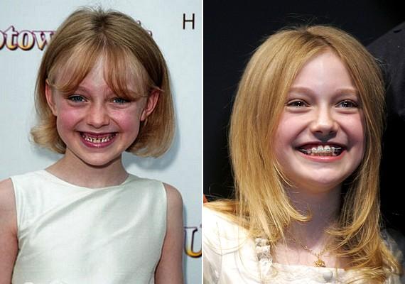 Dakota Fanning gyermekkori mosolya is fogszabályzóért kiáltott.
