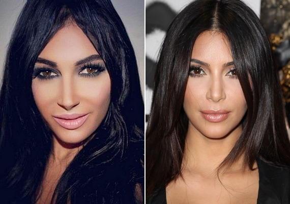 Kim Kardashian többeket is megihletett, de az összes átalakító műtét közül talán a fotón látható sikerült a legélethűbbre.