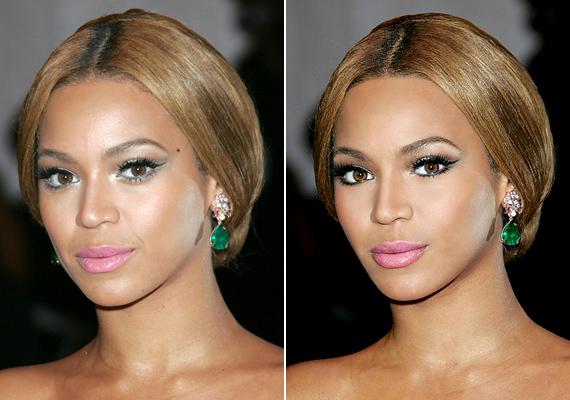 Beyoncé arcvonásai korántsem olyan karakteresek, mint ahogyan azt a címlapokon láthatod.