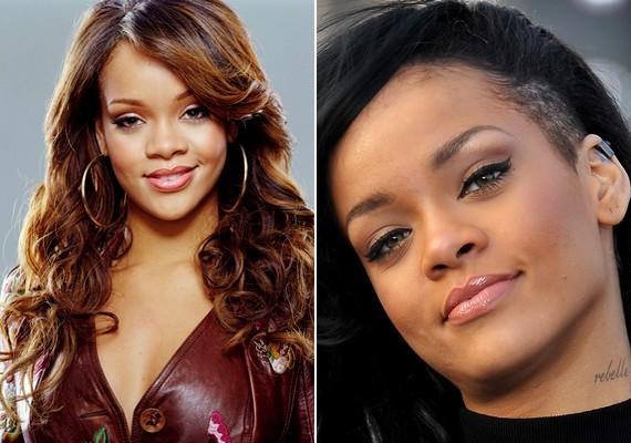 Rihanna is megszabadult orrának egy jelentős darabjától.