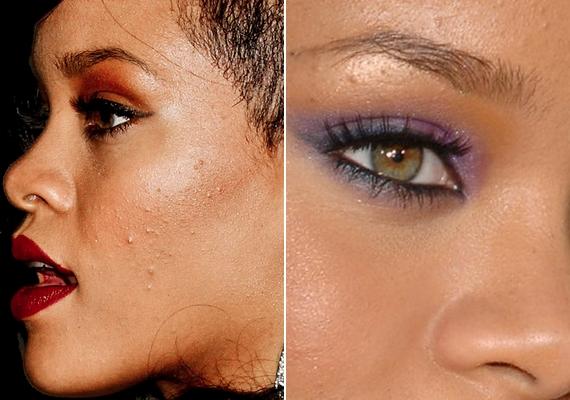 Rihanna bőre sem makulátlan: a 25 éves énekesnő is küzd a mitesszerekkel.