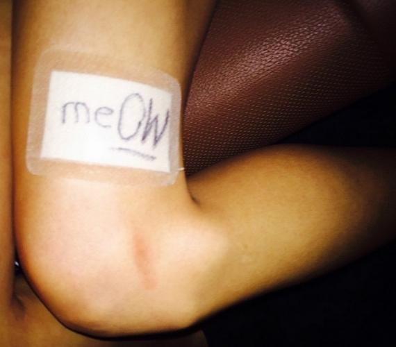 Miután ellátták az énekesnő sebét, a kötésre a miaú szót írta.