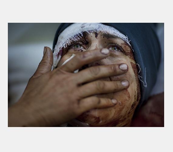 Szíria: a támadások során saját házában megsérült asszony fájdalmai egy szír kórházban.