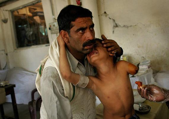 David Guttenfelder 2005-ben díjat nyert fotóján egy kisfiú látható, aki a kasmíri földrengés miatt veszítette el karját.