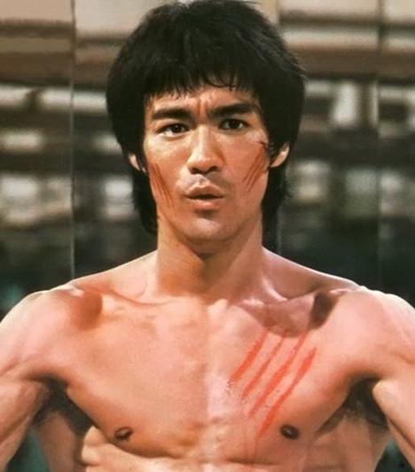 Bruce Lee (1940-1973)  A harcművész fejfájásra panaszkodott, így Betty Ting Pei színésznő aszpirint és más fájdalomcsillapítókat adott neki, ám kiderült, allergiás volt azoknak a gyógyszereknek az összetevőire, amelyeket kapott, így azok agyduzzadást okoztak, ami végül a 32 éves férfi halálához vezetett.