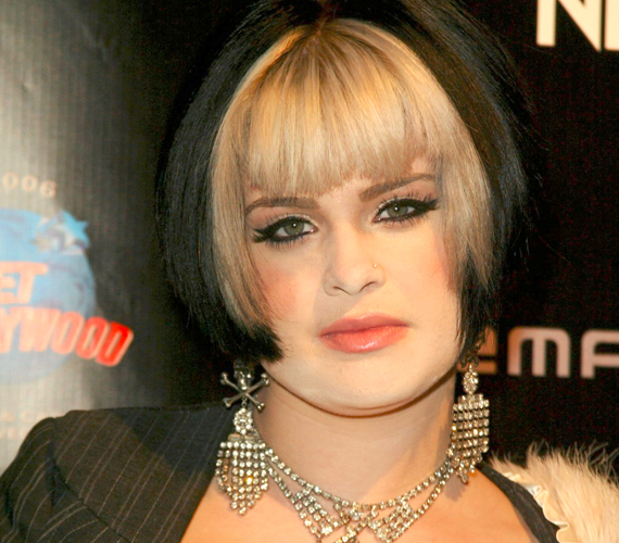 Súlyos fejsérüléssel szállították kórházba Kelly Osbourne-t, amiről a 27 éves angol sztárcsemete Twitteren tájékoztatta rajongóit.