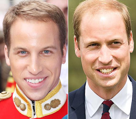 A bal oldalon látható Simon Watkins Anglia legjobb Vilmos-hasonmása, legalábbis saját bevallása szerint. Általában ő játssza Heidi párját. Jobb oldalon a valódi Vilmos herceg látható.