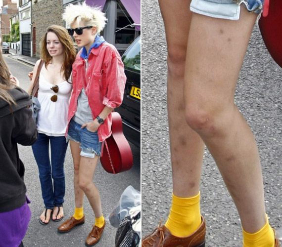 Korábban is rendszeresen kapták lencsevégre lehorzsolt vagy zúzódott lábakkal, 2008-ban sokszor írtak róla sérülései miatt.