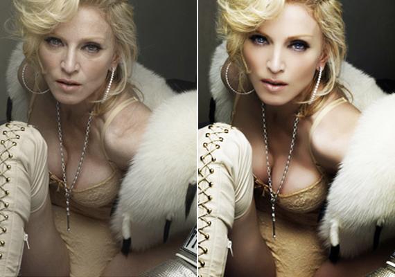 Madonna inkább ufóra hasonlít, mintsem emberi lényre ezen a fotón. Nemcsak a ráncait tüntették el, de a mimikáját is.