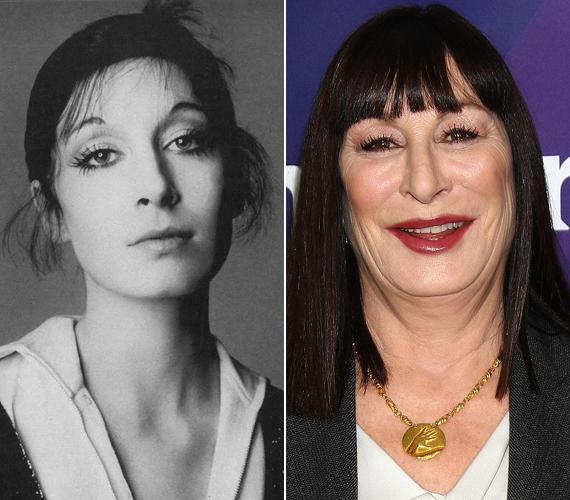 Anjelica Huston két éve a Daily Mailnek azt mesélte, egy botoxinjekciókkal végzett orvosi kísérlet miatt lett ilyen az arca, ami után többször kés alá kellett feküdnie, hogy javítsanak a kinézetén.