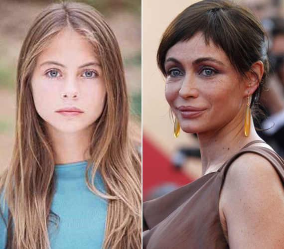 Az 51 éves francia színésznő, Emmanuelle Béart szintén azok közé tartozik, akik nem bírták elviselni, hogy arcukon megjelentek az öregedés első jelei. Az 1996-os Mission Impossible szépségére ma már rá sem ismerni.
