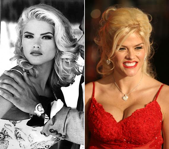 Édesanyja fiatal éveiben a híres Guess divatmárkának is modellkedett, de igazából Playboy-modellként és plasztikai műtétjei révén híresült el.