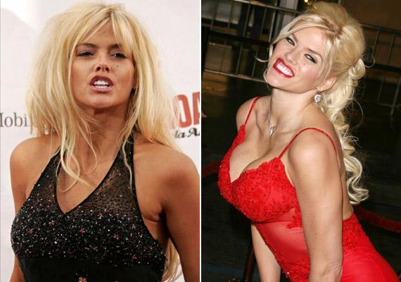 Anna Nicole Smith főként plasztikai műtéteivel és botrányaival vált híressé.