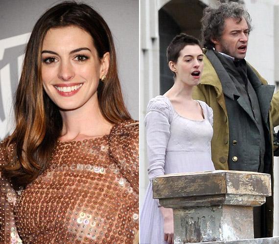 A mindig bájos Anne Hathaway lefogyott, és haját is levágatta új filmszerepe kedvéért: Hugh Jackmannel forgatta a Nyomorultakat.
